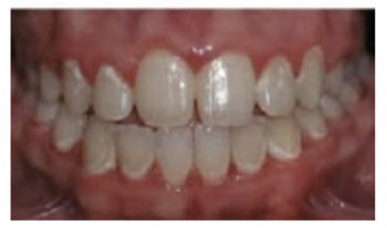 Prevent White Spots While Wearing Braces